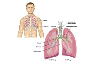 What is COPD? 1