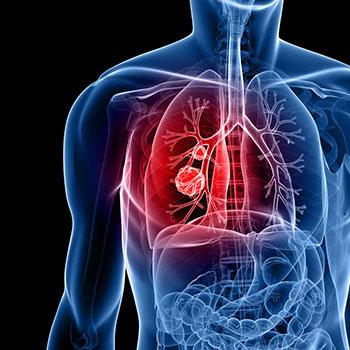 Lung Nodule 1