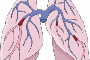 Pulmonary embolism (blood clot in the lungs) 3
