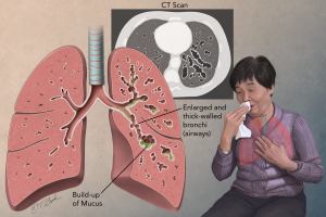 Bronchiectasis in adults 2
