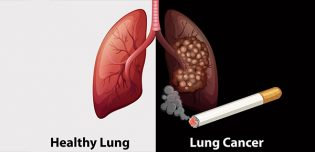 Lung cancer (The Basics) 21