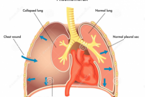 Pneumothorax (collapsed lung) 8