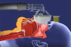 What is CPAP and how does CPAP work? 1